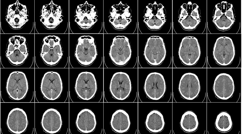 Medical Care Costs of Traumatic Brain Injuries